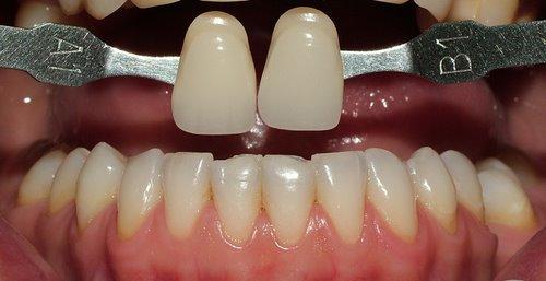 Izbjeljivanje zubi lampom